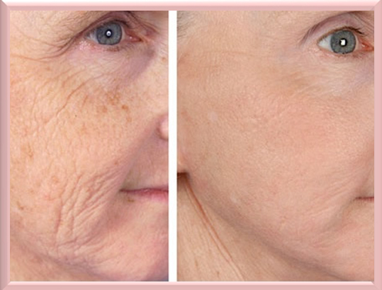 tria age defying laser before and after